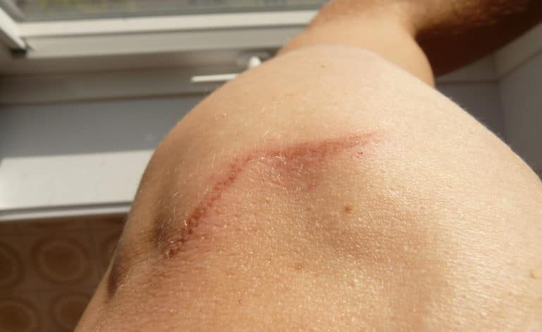 a scar on a person's back